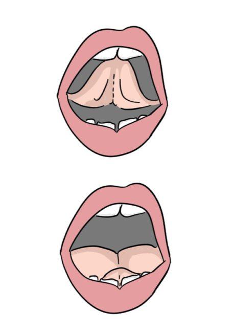 Zungenposition: Unterscheidung vorne-oben / vorne-unten